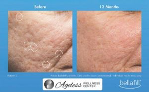 Ageless-Wellness-Closeup-Skin-Sponsored-Feature-Web