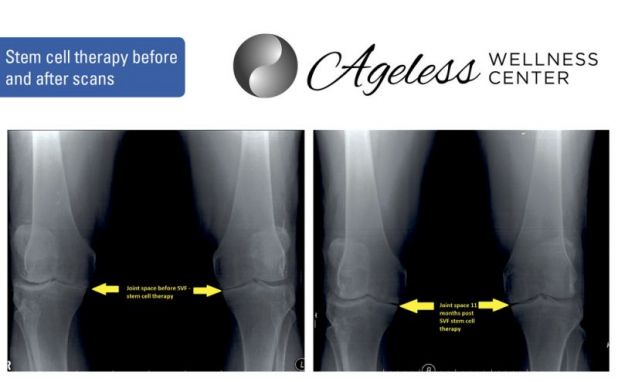 Ageless-Wellness-XRAYS-Sponsored-Feature-Web