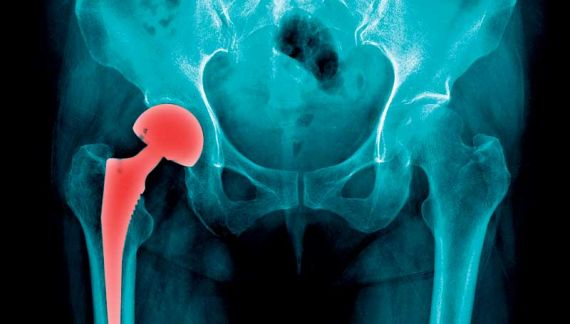 Georgia Bone and Joint: Where total hip replacement patients are walking same-day